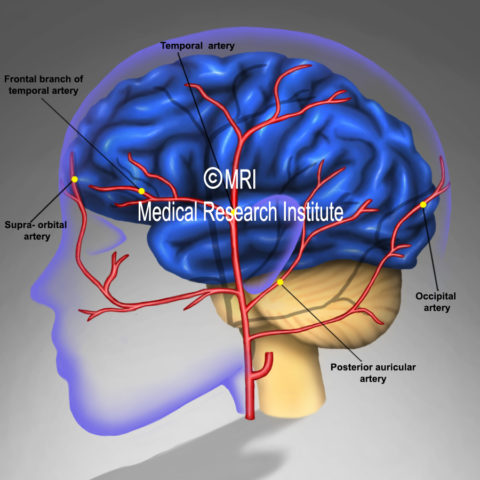 CGRP and migraine arteries