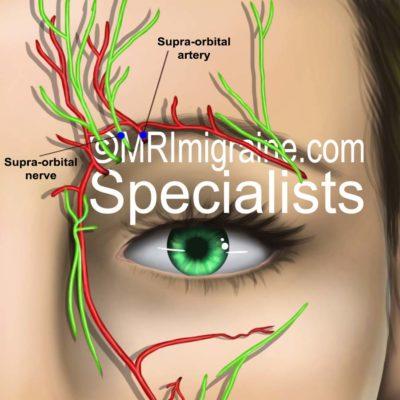 MRIMigraine.com Supra-Orbital Nerve