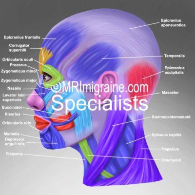 2 side muscles (migraine.com)