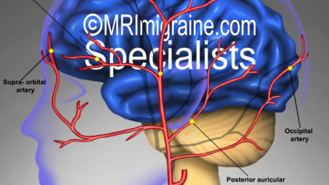 Massage of temporal migraine arteries to prevent attacks