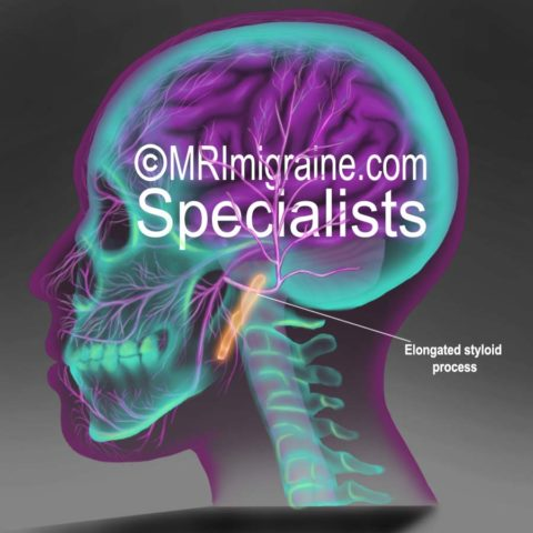 Elongated Styloid process – Eagle syndrome