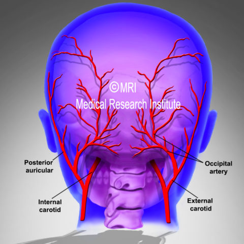 Migraine arteries responsible for pain in twenty nine out of fifty sufferers