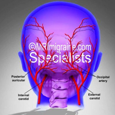 Occipital arteries new (migraine.com)