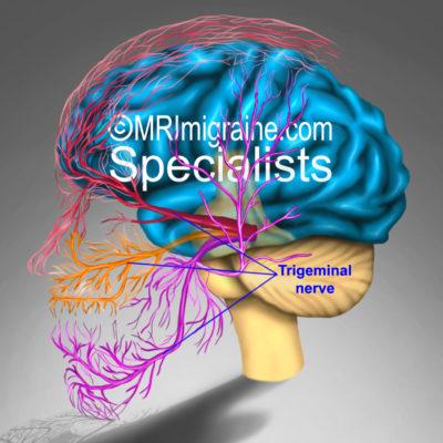 MRIMigraine.com Trigeminal Nerve