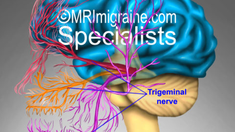 Sensitivity of the nerve during migraine