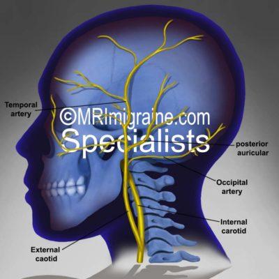 temporal artery (blue)2