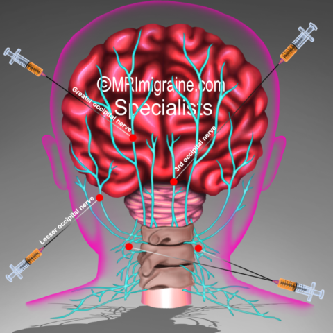 Side effects of Lidocaine mixed with Depo-Medrol for occipital nerve blocks