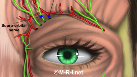 Surpaorbital / Supratrochlear Nerve Blocks Effective in Migraine – A Comparison of Techniques